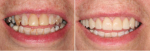 Dental Patient Before and After